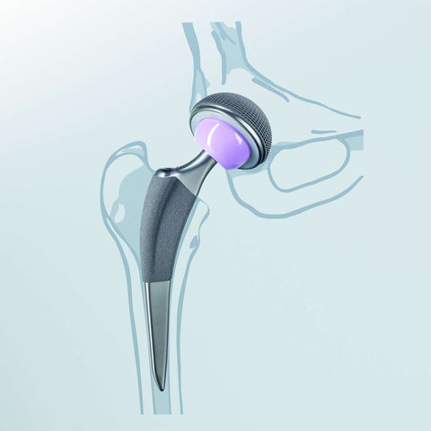 cementfree hip replacement