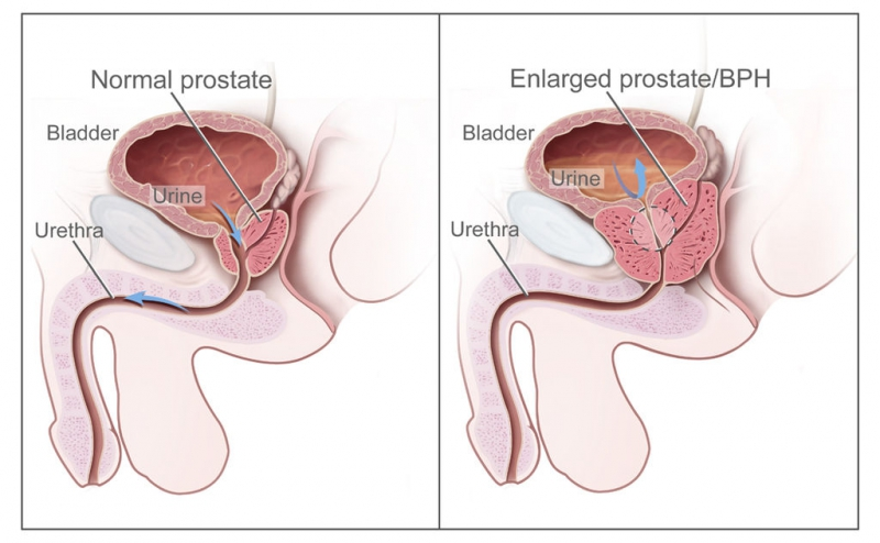 what is enlarged prostate size
