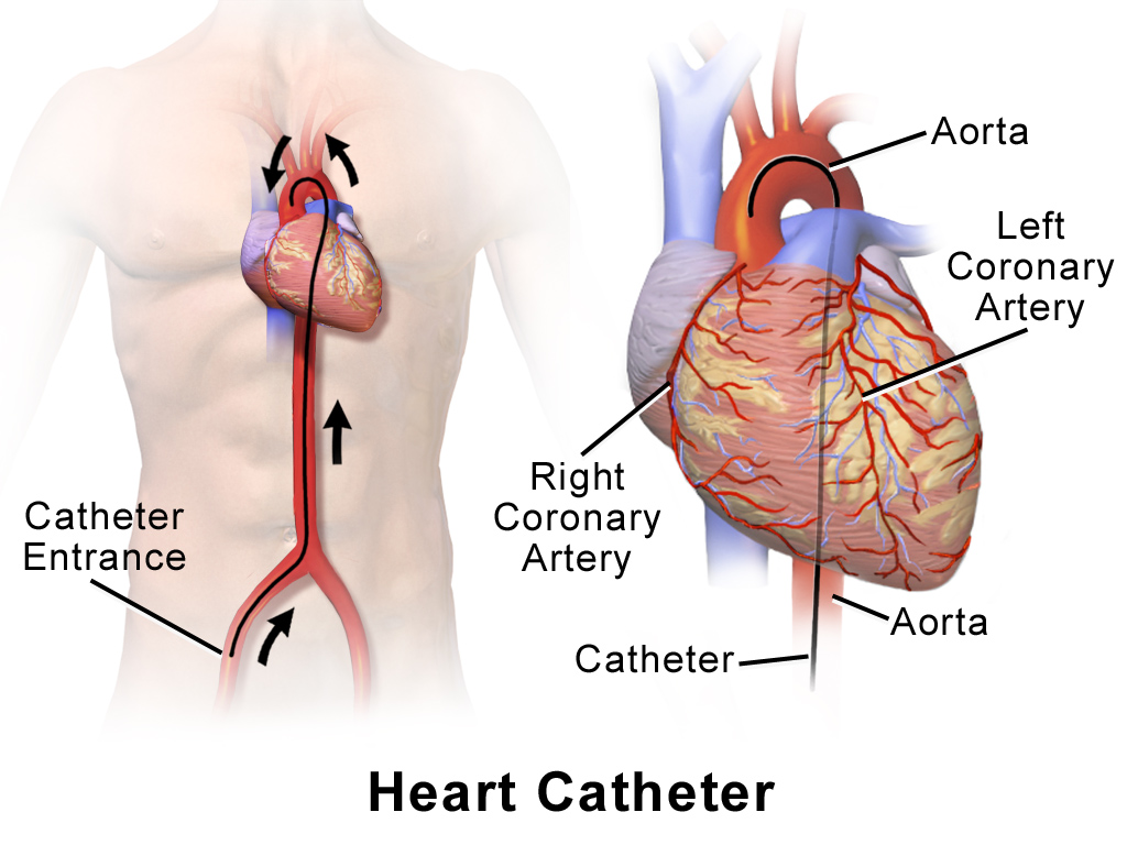 post heart catheterization treatment After cardiac catheterization the predisposing factors, typical presentation, and clinical course of this iatrogenic complication are identified, and the role of surgery in its treatment.